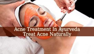 Acne Treatment In Ayurveda